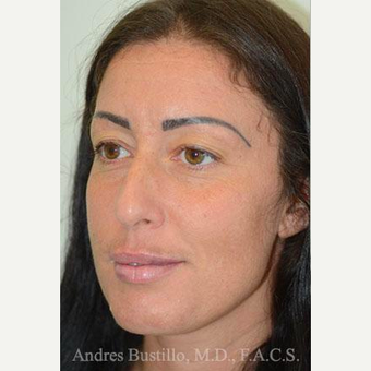 39 year old woman treated with Rhinoplasty before 3460898