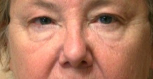 65-74 year old woman treated with Eye Bags Treatment before 3046873