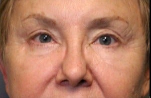 65-74 year old woman treated with Eye Bags Treatment after 3046873