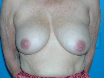 59 yr old woman with breast lift before 1098257
