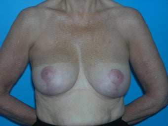 59 yr old woman with breast lift after 1098257