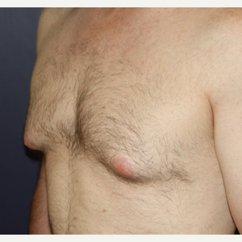 25-34 year old man treated with Male Breast Reduction before 3033689