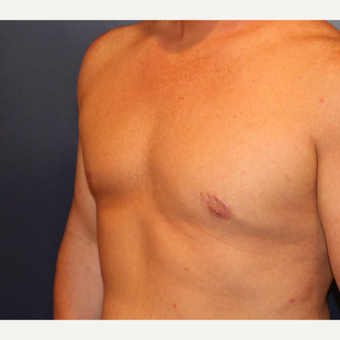 25-34 year old man treated with Male Breast Reduction after 3033689