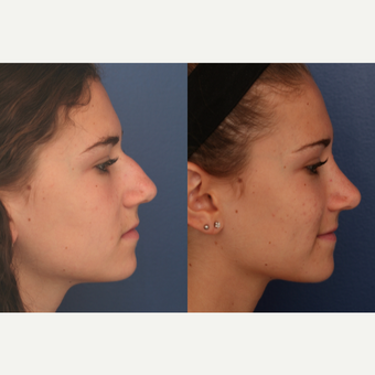 25-34 year old woman treated with Rhinoplasty before 3698927