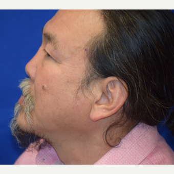 55-64 year old man treated with Rhinoplasty after 3741622