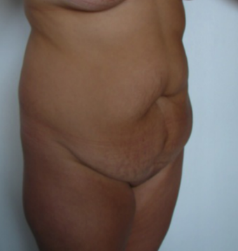 35-44 year old woman treated for Tummy Tuck before 1528468