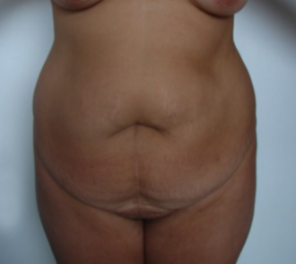 35-44 year old woman treated for Tummy Tuck 1528468