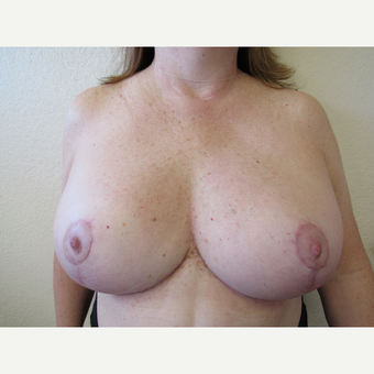 55-64 year old woman treated with Breast Reduction after 3412479