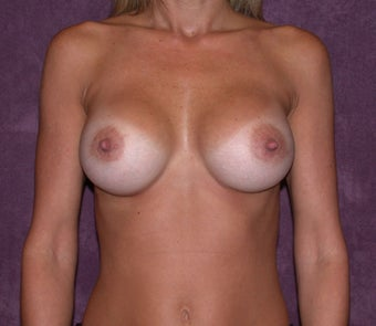 Breast augmentation with saline breast implants after 94642