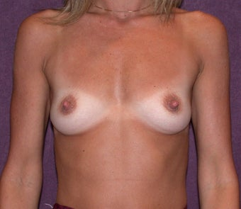 Breast augmentation with saline breast implants before 94642
