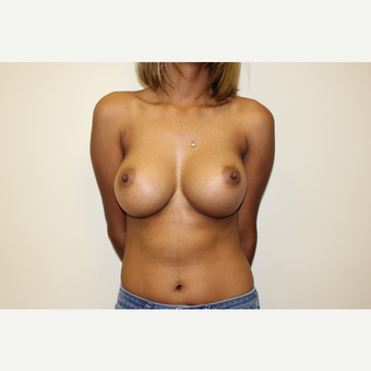 Breast Augmentation after 3418053