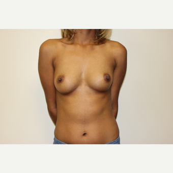 Breast Augmentation before 3418053