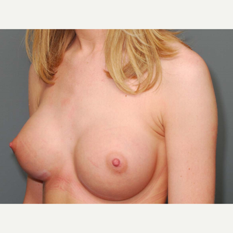 23 y/o Inframammary Sub Muscular Breast Augmentation after 3066211