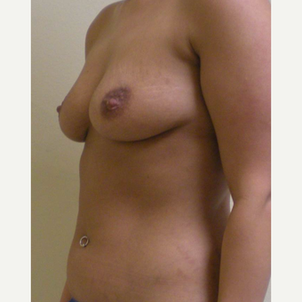 35-44 year old woman treated with Mommy Makeover before 3447434