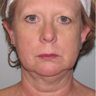 55-64 year old woman treated with SMAS Facelift