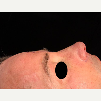 35-44 year old man treated with Rhinoplasty after 3211859