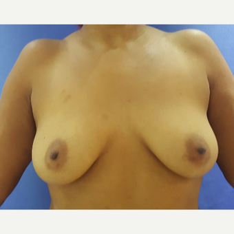 27 year old woman treated with Breast Augmentation before 3396283