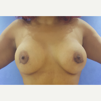 27 year old woman treated with Breast Augmentation after 3396283