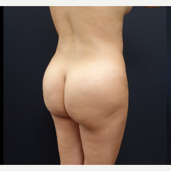 25-34 year old woman treated with Brazilian Butt Lift Revision before 3286170