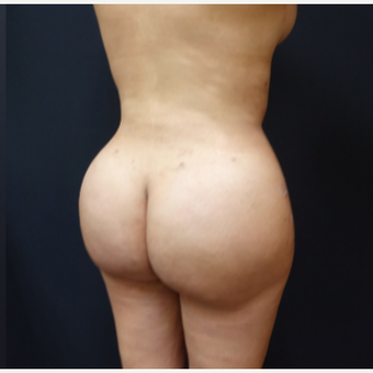 25-34 year old woman treated with Brazilian Butt Lift Revision after 3286170