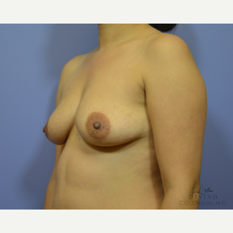 25-34 year old woman treated with Breast Augmentation before 3419043