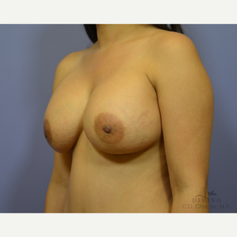25-34 year old woman treated with Breast Augmentation after 3419043