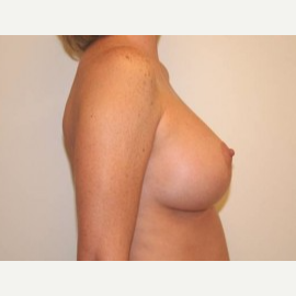35-44 year old woman treated with Breast Lift after 3339173