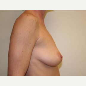 35-44 year old woman treated with Breast Lift before 3339173