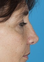 46 yo female treated for alar retraction, saddle nose deformity, and assymetric nasal tip after 1484305