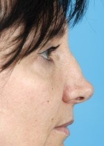 46 yo female treated for alar retraction, saddle nose deformity, and assymetric nasal tip before 1484305