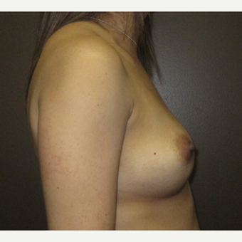 35-44 year old woman treated with Breast Implants before 3424524