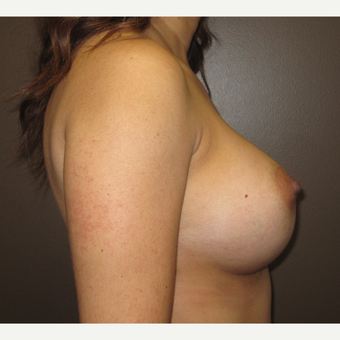 35-44 year old woman treated with Breast Implants after 3424524