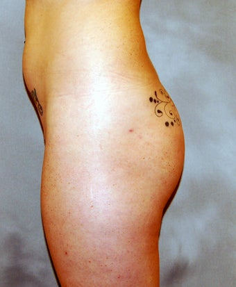 Buttock Augmentation before 1030609