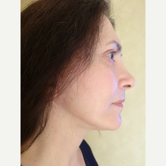45-54 year old woman treated with Facelift after 3749268