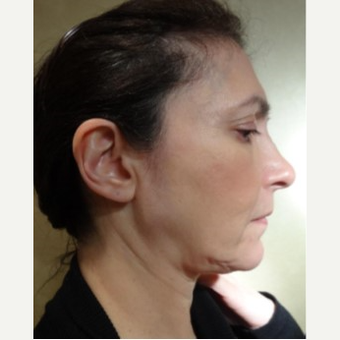 45-54 year old woman treated with Facelift before 3749268