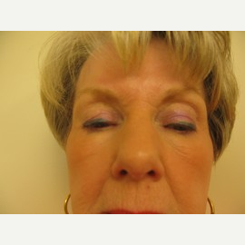 65-74 year old woman treated with Eyelid Surgery before 2988449
