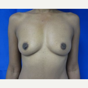 Breast Implant Revision before 3168556