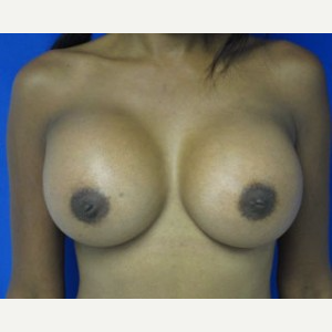 Breast Implant Revision after 3168556