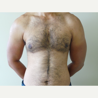 25-34 year old man treated with Male Breast Reduction after 3454562