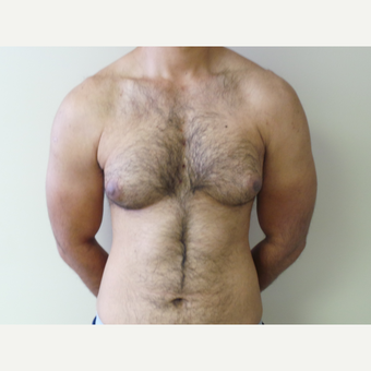 25-34 year old man treated with Male Breast Reduction before 3454562