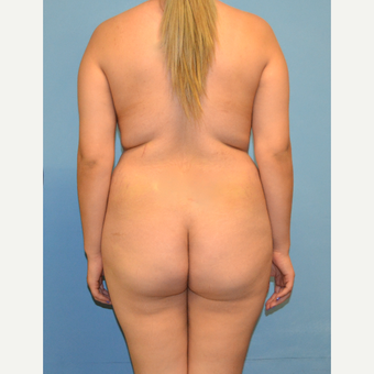 25-34 year old woman treated with Brazilian Butt Lift before 3446272