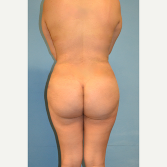 25-34 year old woman treated with Brazilian Butt Lift after 3446272