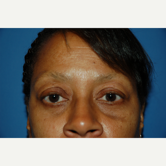 55-64 year old woman treated with Eyelid Surgery after 3610629
