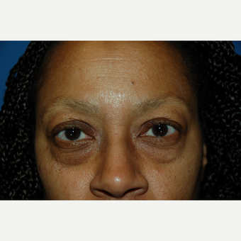 55-64 year old woman treated with Eyelid Surgery before 3610629