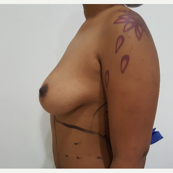 25-34 year old woman treated with Breast Lift with Implants before 3602803