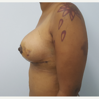 25-34 year old woman treated with Breast Lift with Implants after 3602803