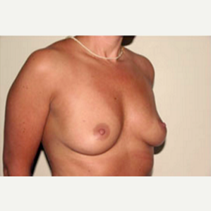 35-44 year old woman treated with Breast Augmentation before 3704505