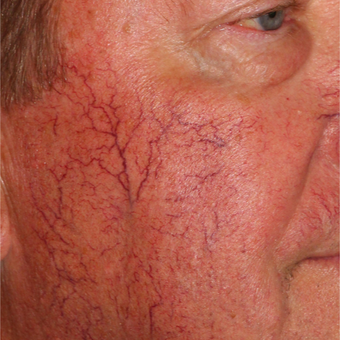 64 year old man treated one time with the Vbeam and Cool Touch lasers. before 3414071