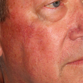 64 year old man treated one time with the Vbeam and Cool Touch lasers. after 3414071