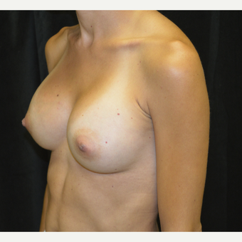 35-44 year old woman treated with Breast Augmentation after 3423887